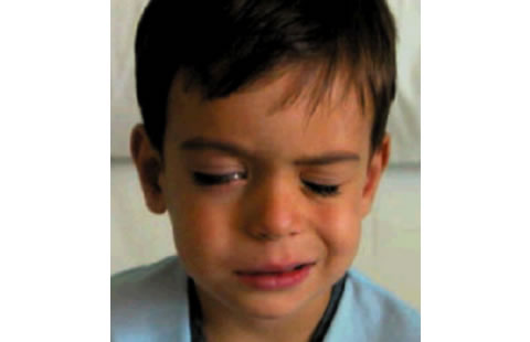 Puede la amoxicilina causar enrojecimiento facial