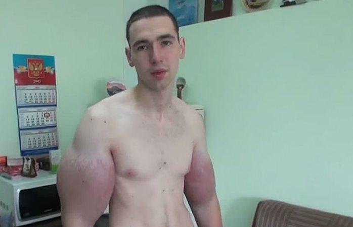 Hulk ruso desea la muerte tras dolor insoportable en brazos