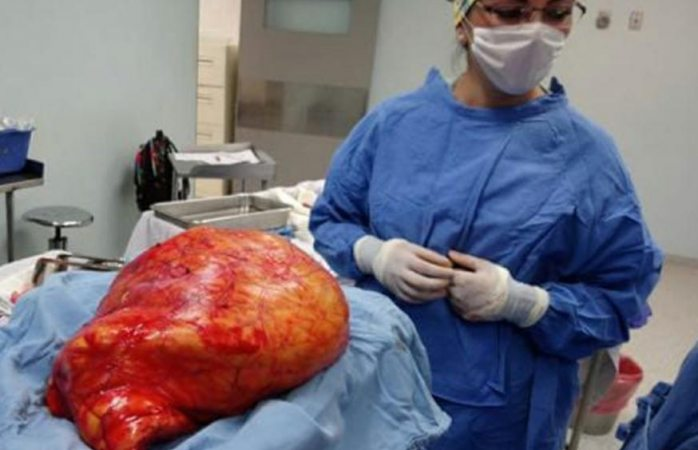 Extirpan tumor de 17 kilos a mujer en hospital imss Durango