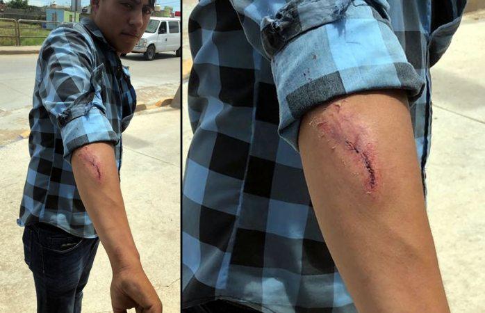 Choque deja a motociclista herido en la nueva españa
