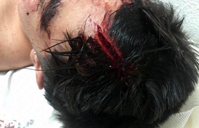 Denuncia joven brutal golpiza por parte de agentes de vialidad