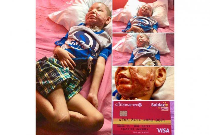 Solicitan apoyo para niño que sufrió quemaduras graves