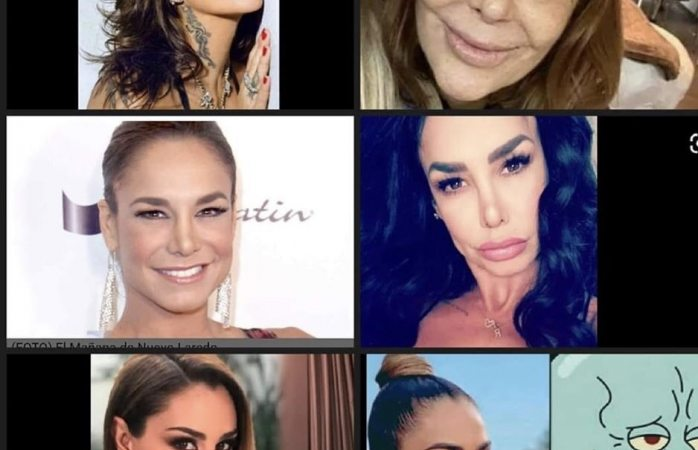 De bellas famosas pasaron a ser feas y plásticas