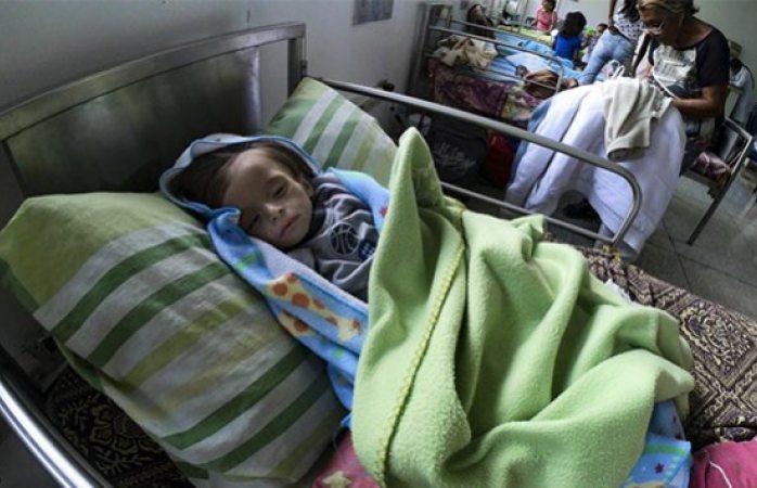 Niños desnutridos, el rostro más desgarrador de Venezuela