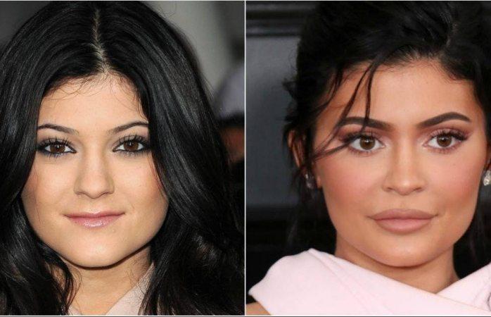 Jura Kylie Jenner que no tiene cirugías, pero sus fotos no mienten