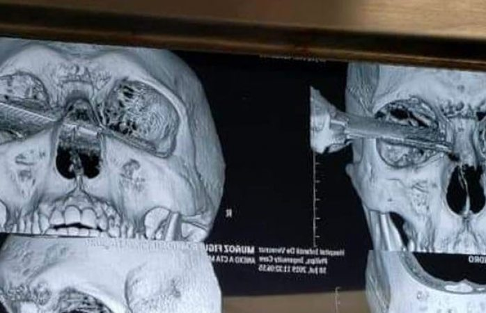 Pierde el ojo hombre acuchillado en pelea por cajón de estacionamiento