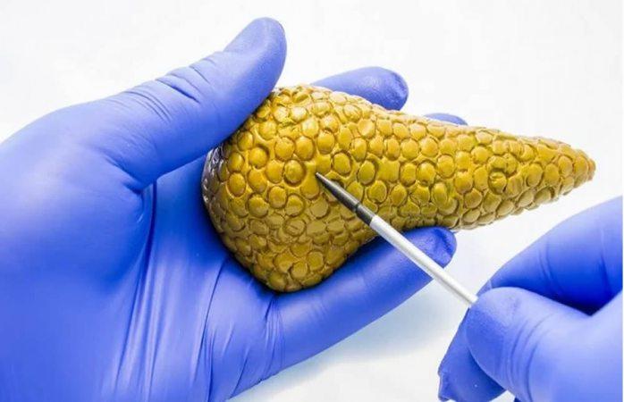 Crean páncreas bioartificial que podría ser la cura para la diabetes