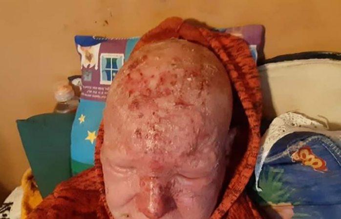 Colectan fondos para tratar enfermedad de la piel