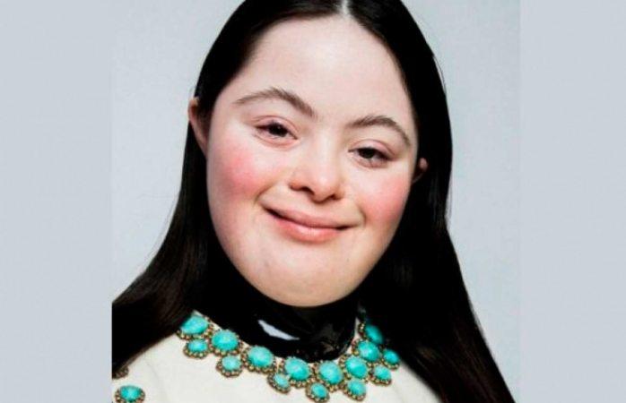 Ellie goldstein, la nueva modelo de gucci con síndrome de down